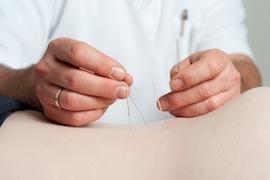 Dr. med. Klaus-P. Maurer bei der Akupunktur